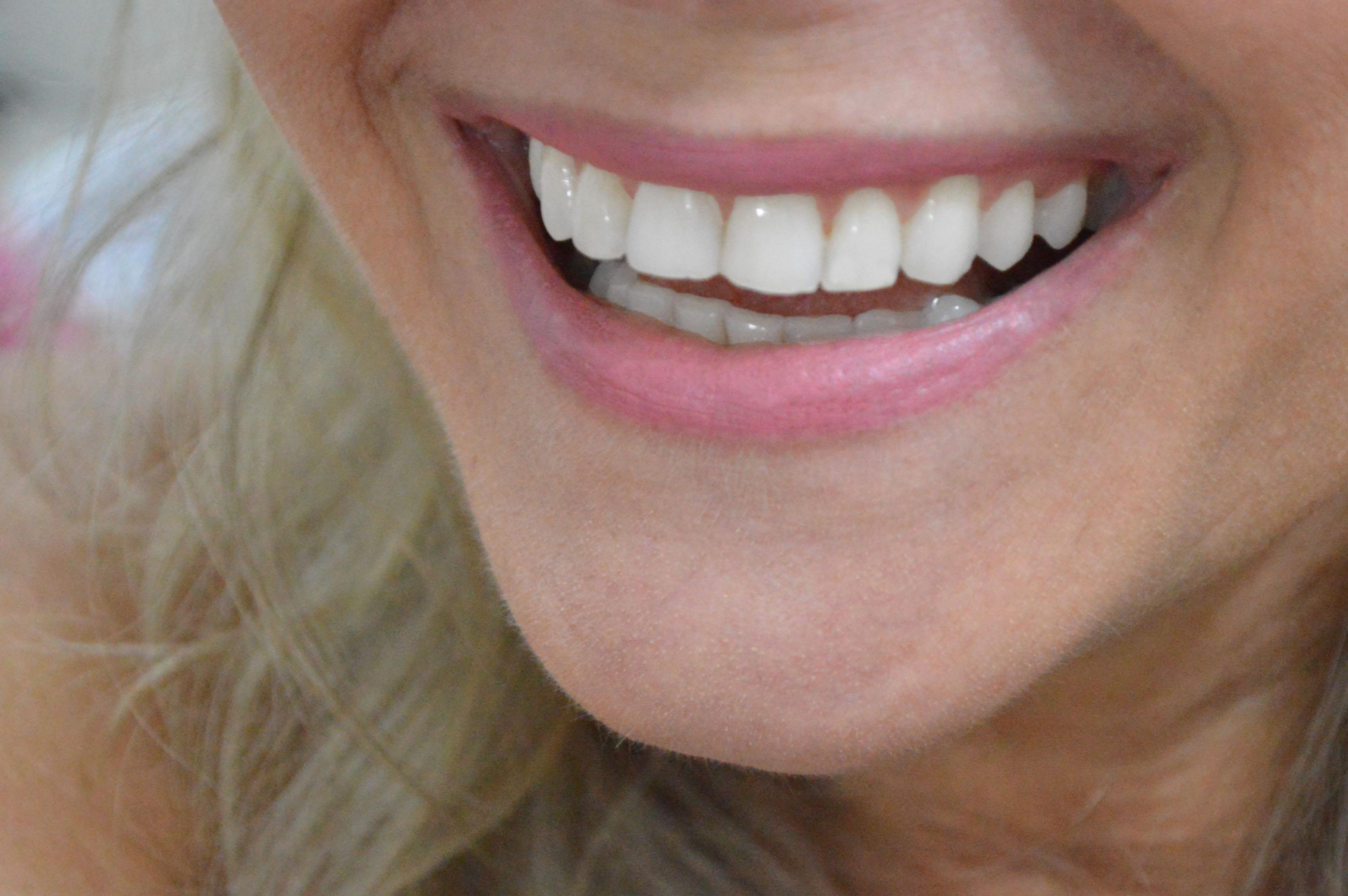 Odontólogo da sesau explica quais os alimentos foto Carla Cleto (2)